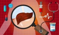 liver cancer disease illustration human anatomy sick unhealthy treatment medical vector